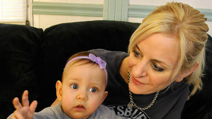 Cami Santee, with her mother, Tami Dobrinski, had surgery to remove the external part of a tumor while part of her body was still in the womb.