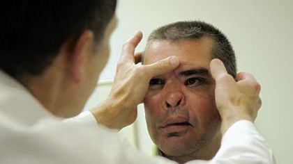 Doug Surowiec's surgeon, Steven Bonawitz, examines his face during an appointment last week at UPMC Presbyterian.