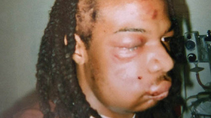 Jordan Miles' badly bruised head and face after being arrested by Pittsburgh police officers.